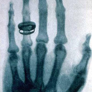 A história da Radiografia
