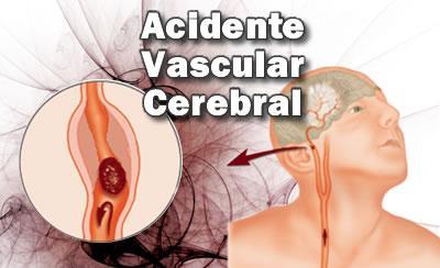 AVC - Acidente Vascular Cerebral