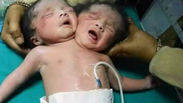Bebês Que Nasceram Com Duas Cabeças