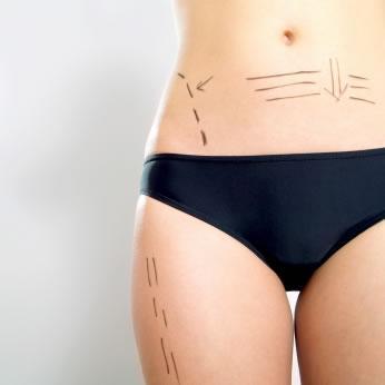 Cirurgia plástica e sua técnica