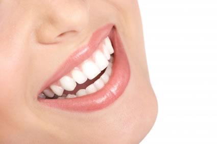 Como manter os dentes brancos
