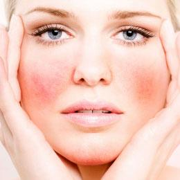 Como tratar as frieiras e eritrose facial?