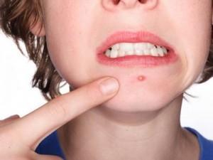 Dicas de como evitar espinhas