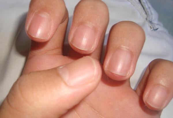 É certo homem pintar as unhas com esmalte colorido?