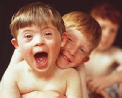 O que é o Síndrome de Down?