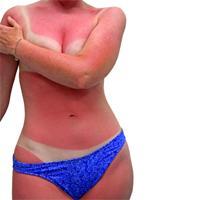Prevençao do cancro da pele