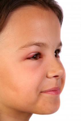 Sintomas desencadeados pela conjuntivite