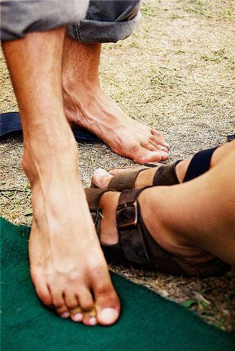 Calos nos pés