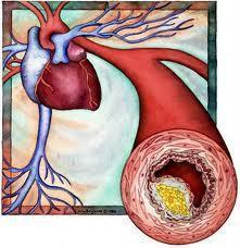 Como baixar os níveis de Colesterol?