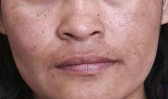 Como evitar manchas no rosto