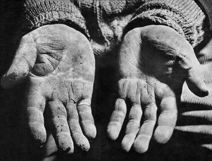 Não deixe que sua mãos fiquem feias