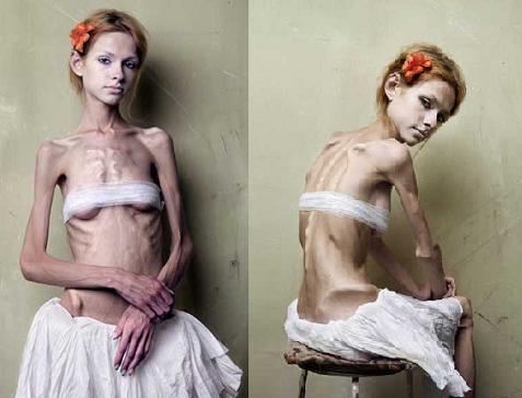 O que é Anorexia Nervosa