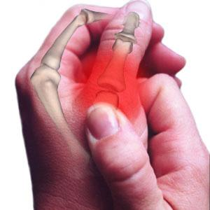Reconhecer a artrite e artroses