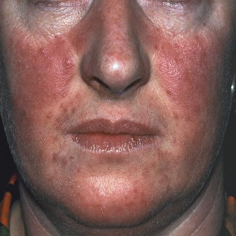 Rosácea -problema de pele