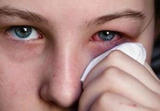 Tratamento a conjuntivite, contusão, convulsão e doenças de coração